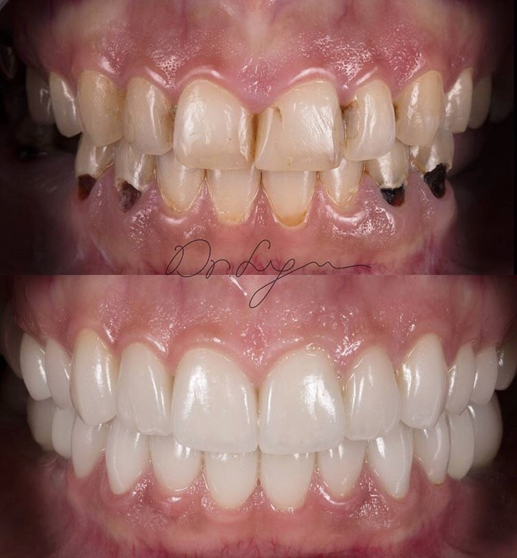 NATURAL- A key word in Dr. Lyu's collection of smile makeovers. Train your eyes to distinguish the detail that creates Beautiful and Natural Smile :)