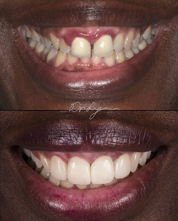 Health comes first. All infections treated first before we close the gap and restore them with 4 anterior crowns