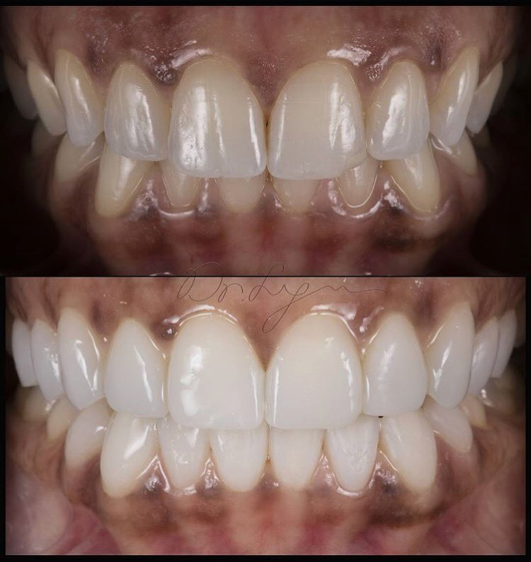 """When you need that EXTRA """"edge"""" in your Smile!"""