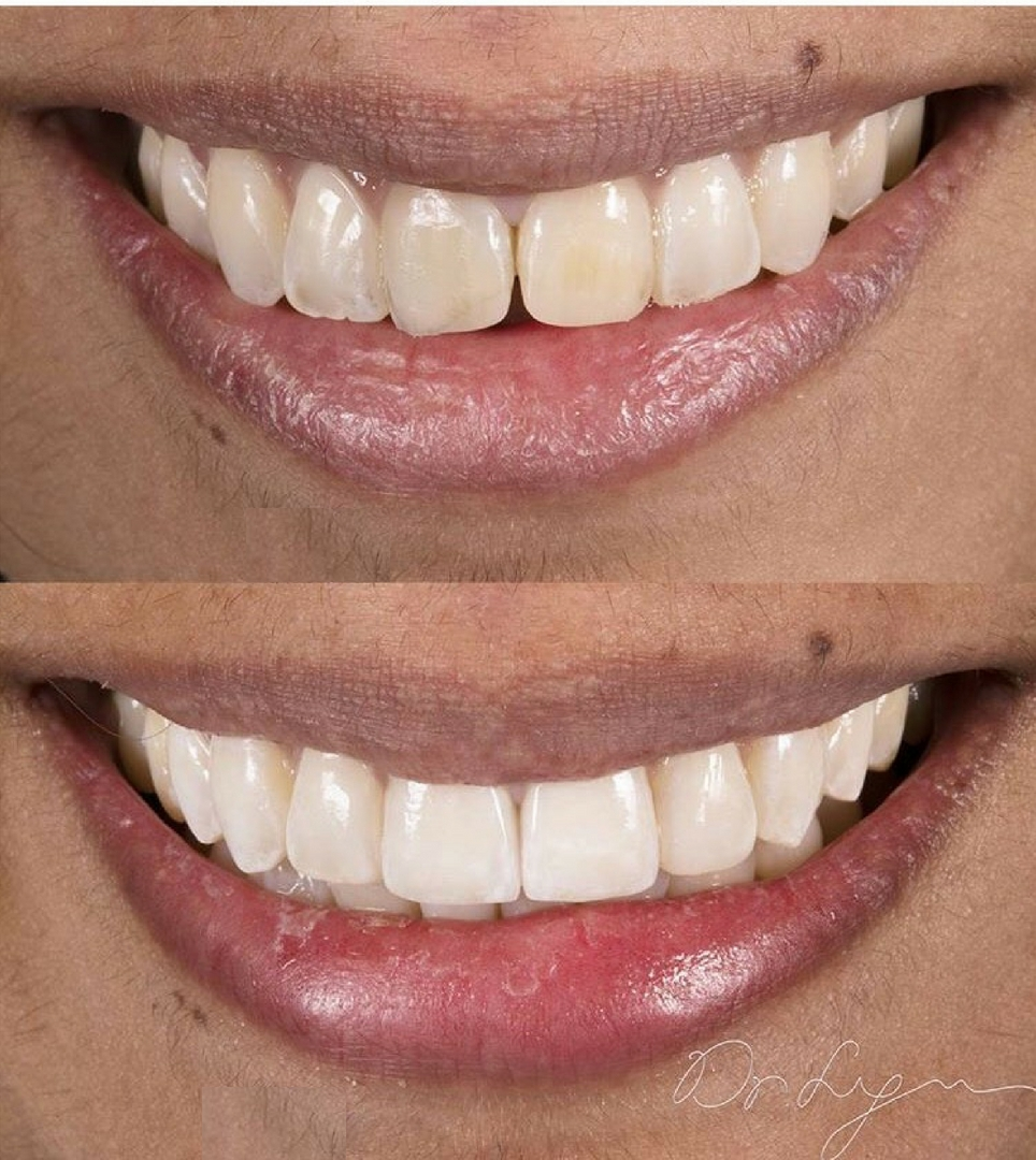 2 porcelain veneers and 2 composite veneers done. Can you tell which is which?