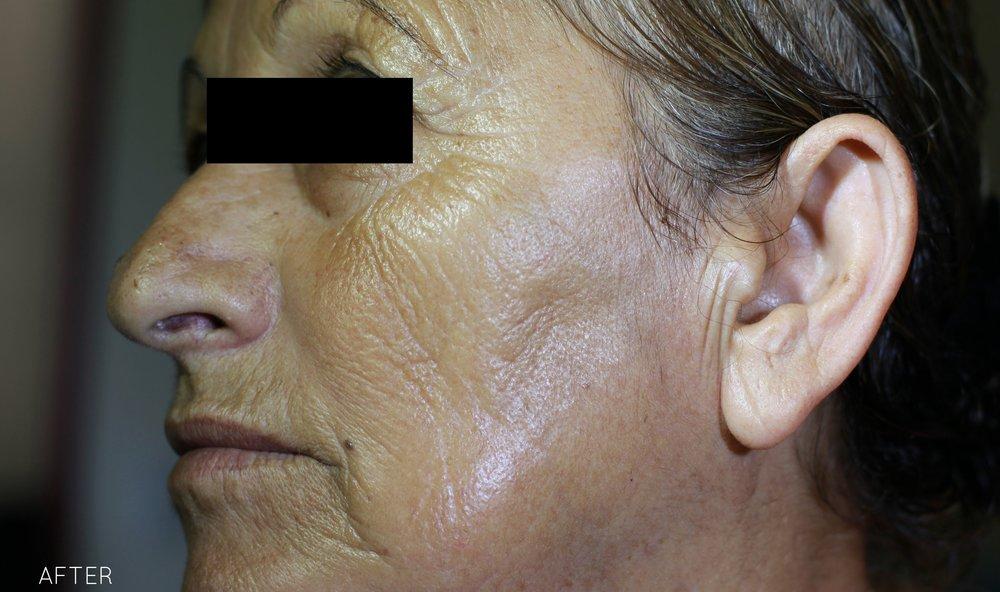 3CO2RE_Dr_Alain_Braun_After 1 Treatment.jpg