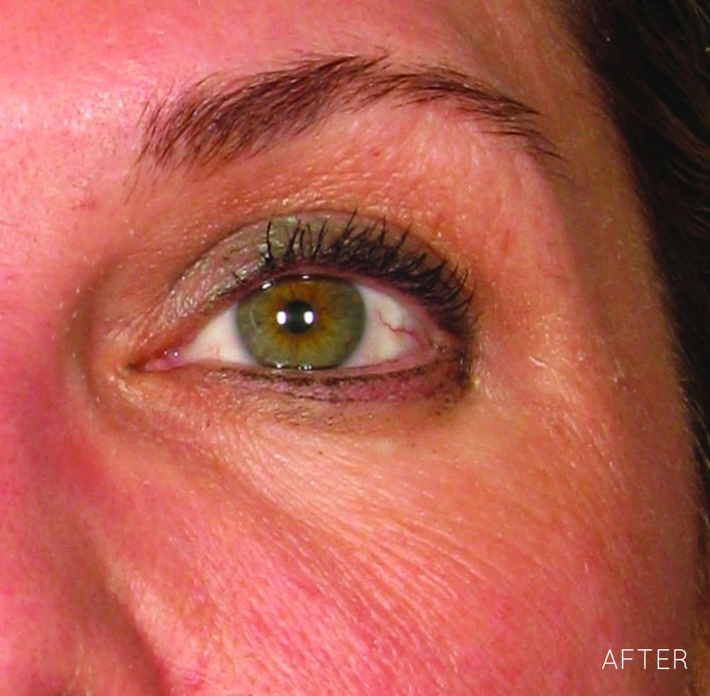 Ultherapy-0030J-M_450Day-1TX_AFTER_Brow_hi-res copy.jpg