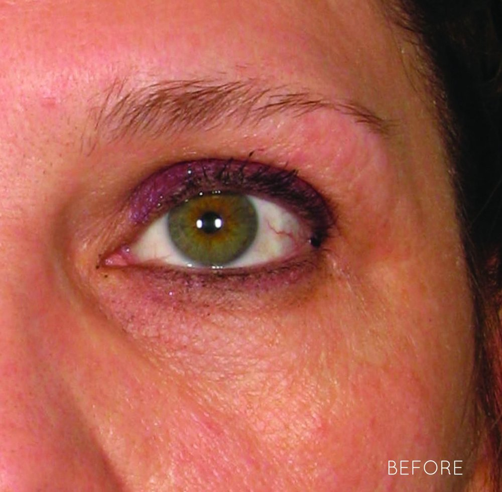 Ultherapy-0030J-M_0Day_BEFORE_Brow_hi-res copy.jpg