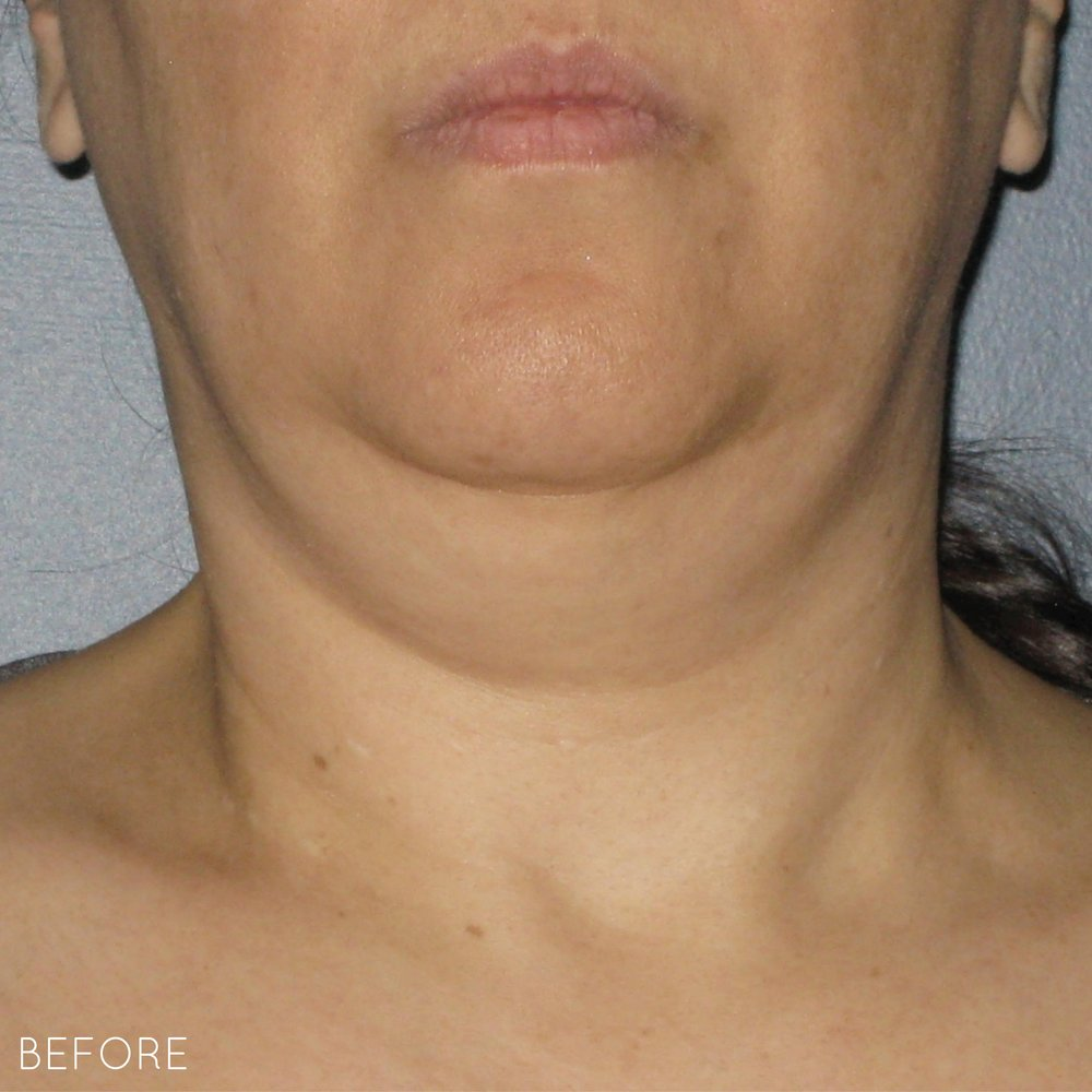 Ultherapy-0014-0086W_0Day_BEFORE_Neck_hi-res.jpg