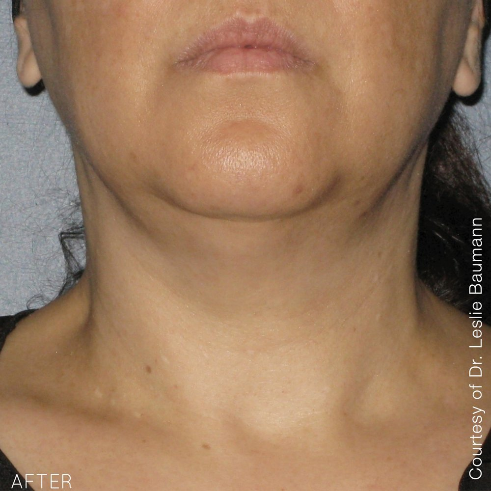 Ultherapy-0014-0086W_90Day_AFTER-1TX_Neck_hi-res.jpg
