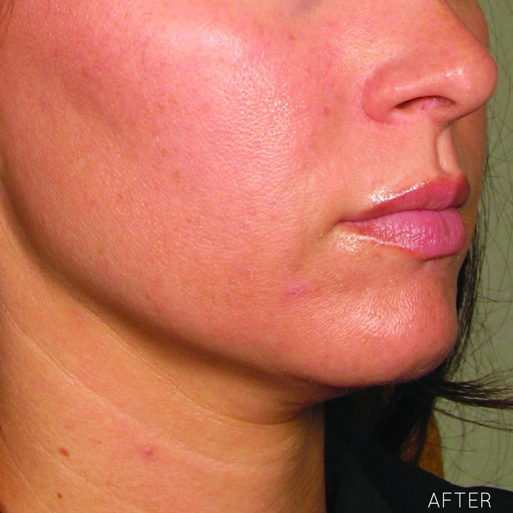 Ultherapy-0132P-H_120Day-1TX_AFTER_LOWER_hi-res.jpg
