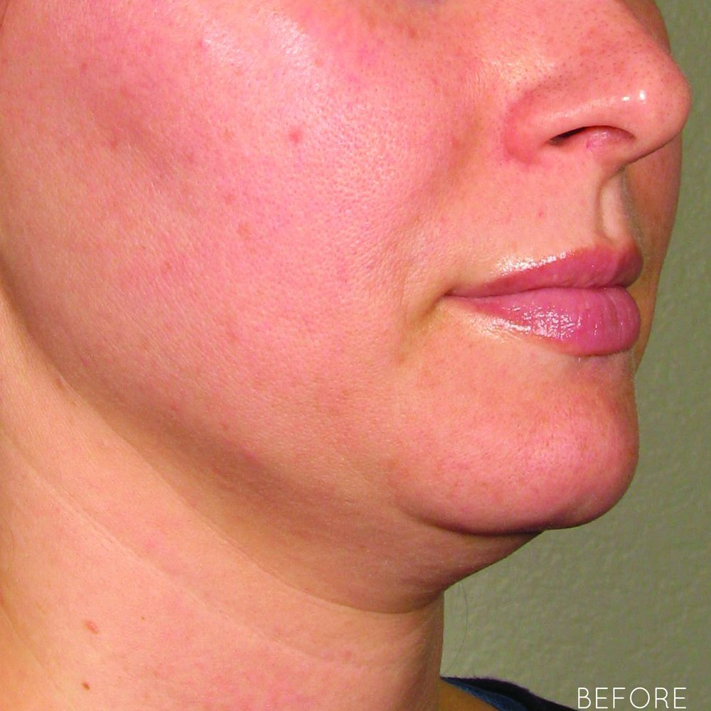 Ultherapy-0132P-H_0Day_BEFORE_LOWER_hi-res.jpg