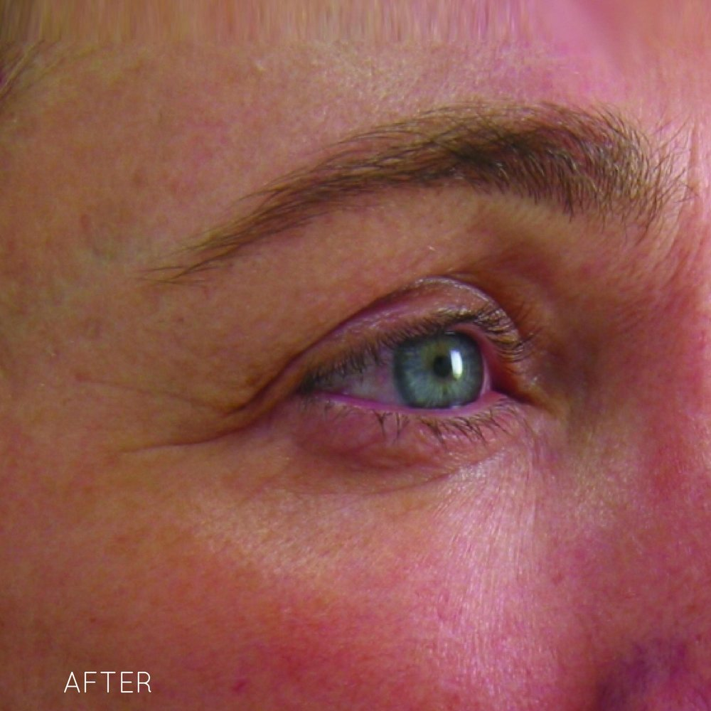 Ultherapy-024G-002U_120Day_AFTER-1TX_Brow_hi-res.jpg