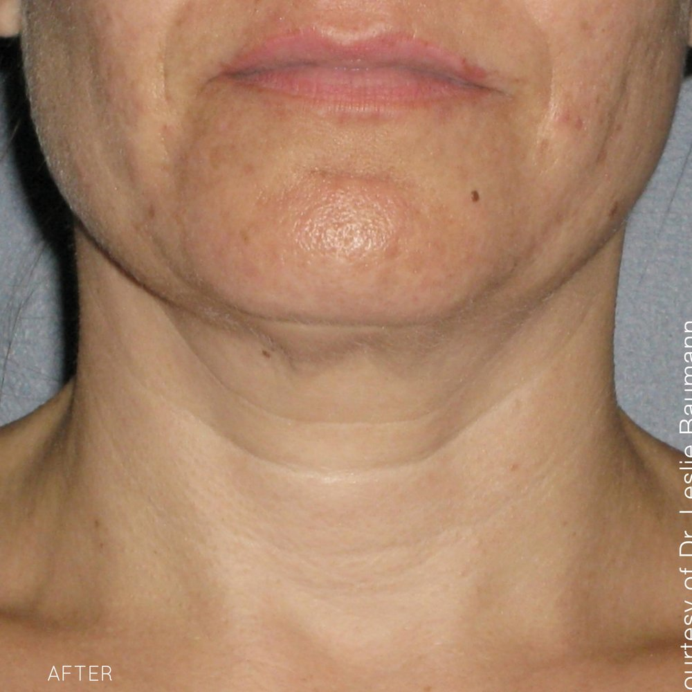 Ultherapy-0026-0086W_180Day_1TX_AFTER_Neck1_hi-res.jpg