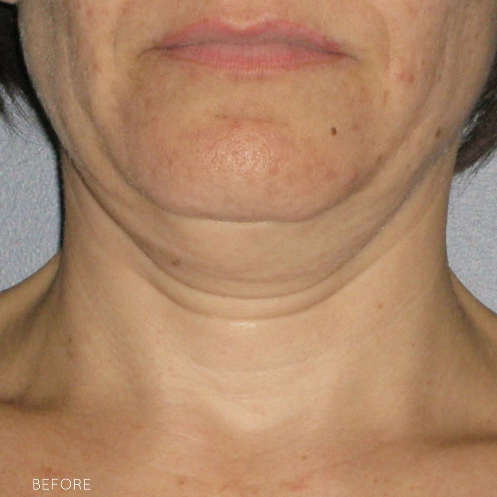 Ultherapy-0026-0086W_0Day_BEFORE_Neck1_hi-res.jpg