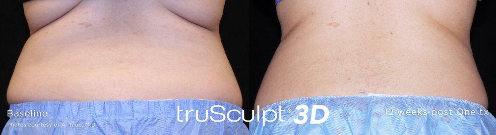 truSculpt_3D_14.jpg