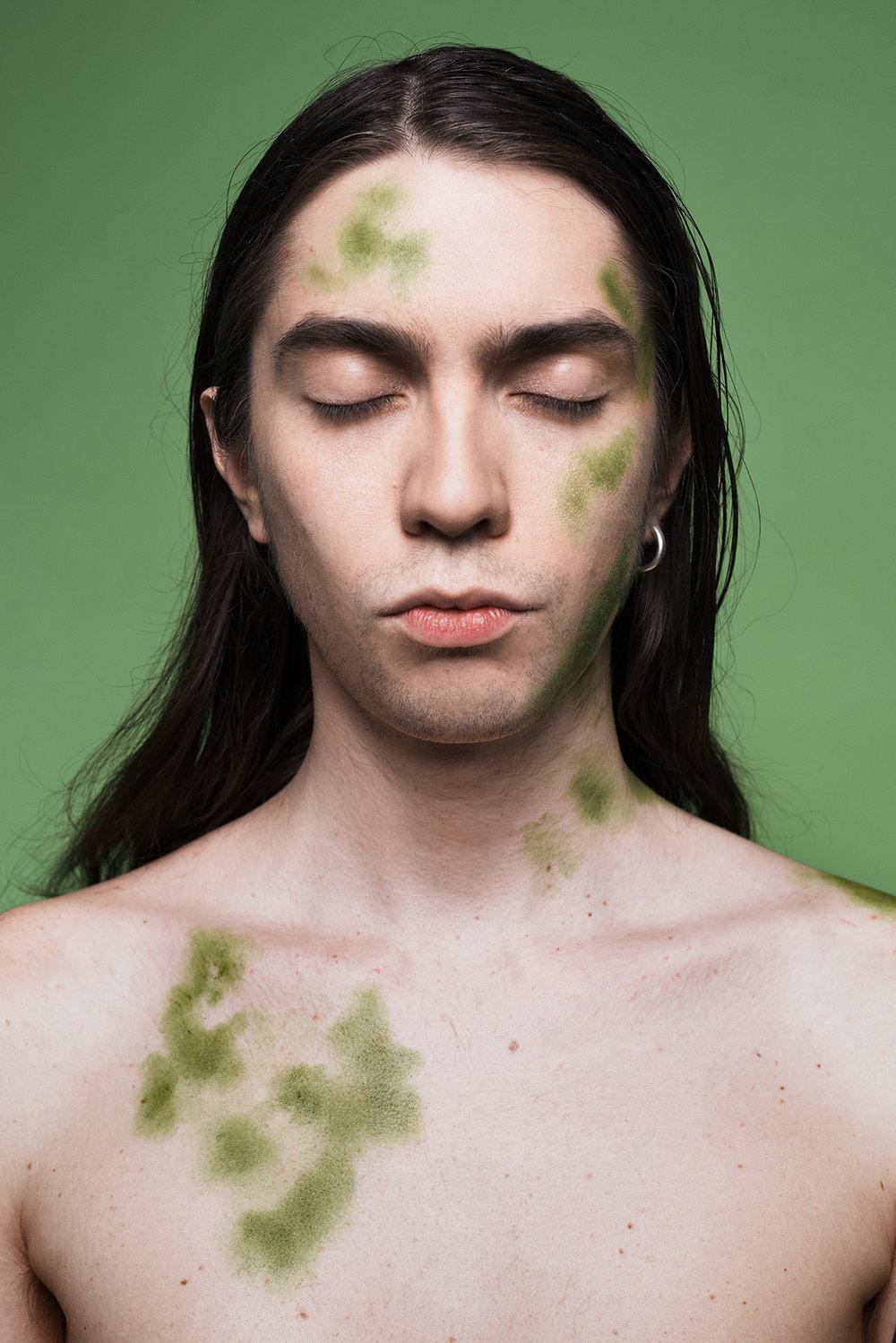 Symptom på Svartsjuka: Grön av avund.