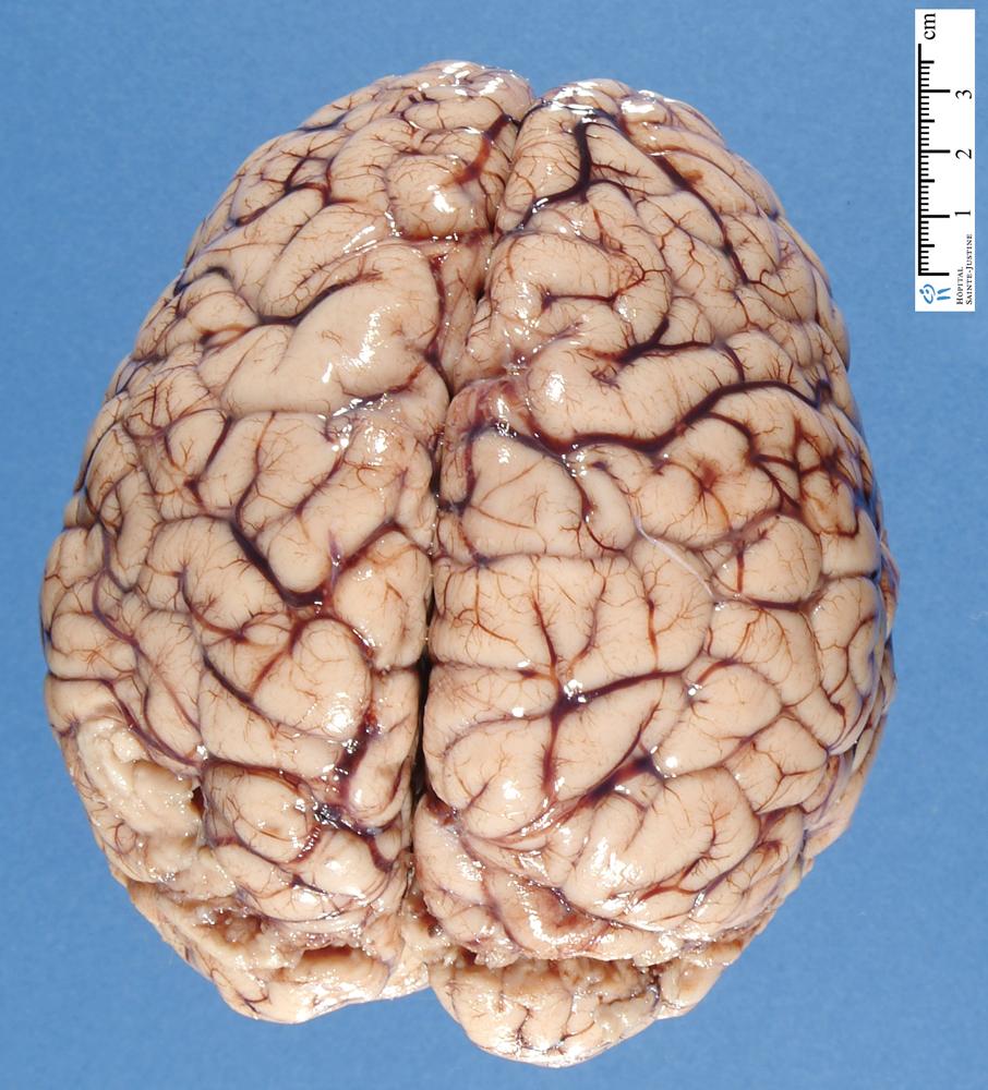 Brain Top Down.jpg