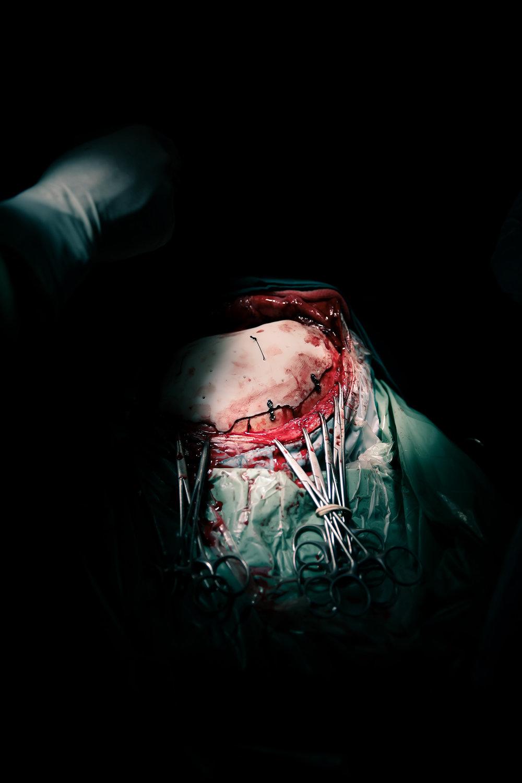 20131218-Surgery-Alfredo-BA-518.jpg