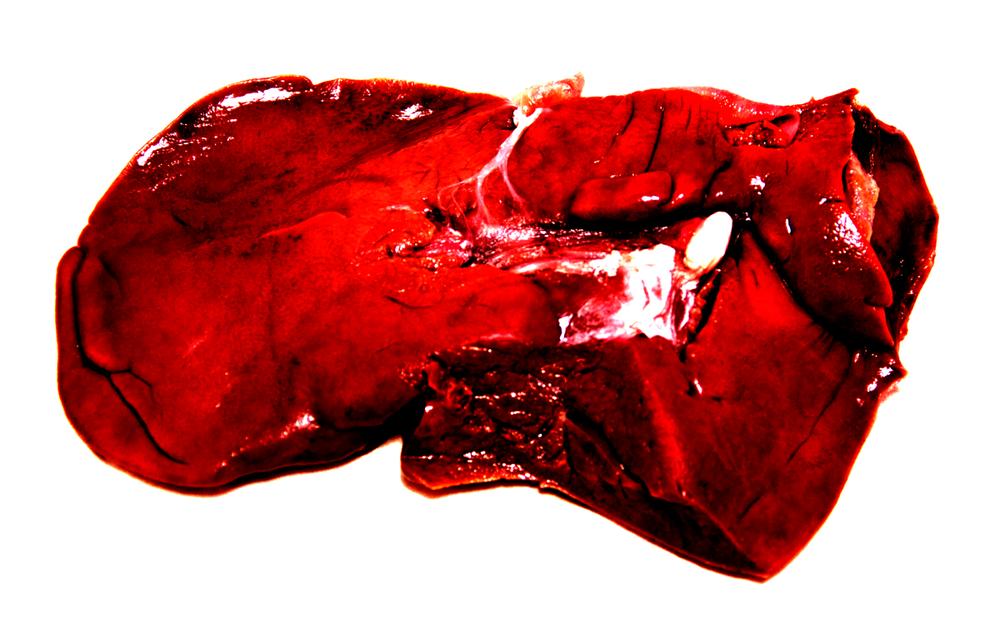 Untitled (liver #1), 2014