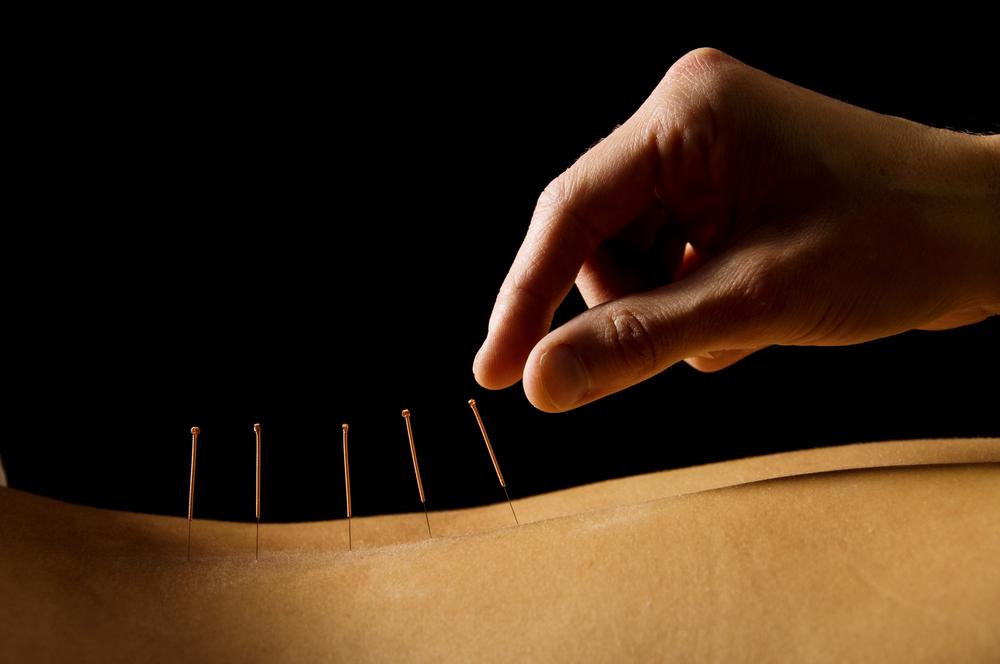bigstock-Acupuncture-3093185 - spine needles.jpg