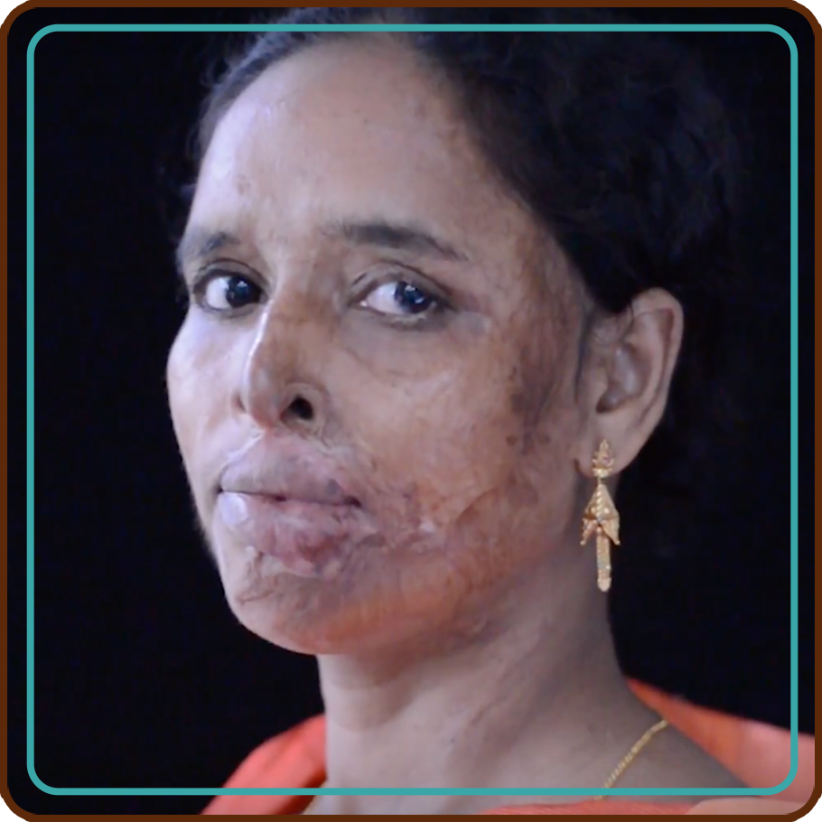 ActionAid - the distillery