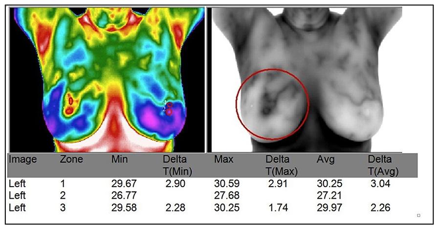 Breast thremal imaging
