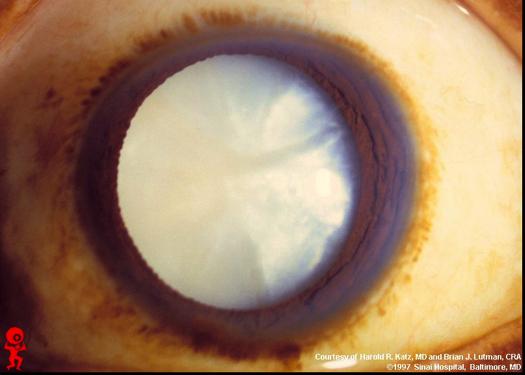 cataractpix.png