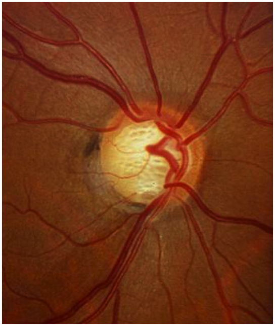 Glaucomatous Optic Nerve- loss especially of inferior nerve fibers