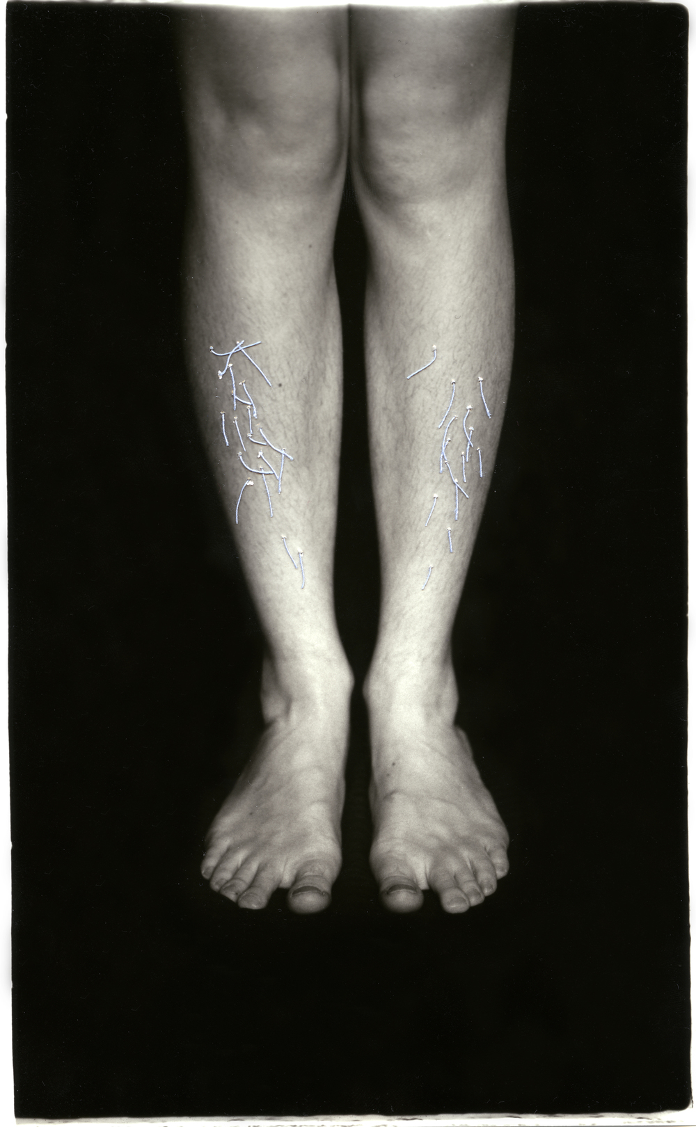 Ingrown    Silver Gelatin Print, Thread, 2014