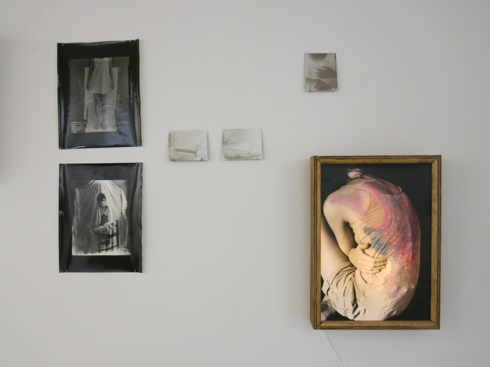 Bottom Right: Heated    Upper Left: Self Portraits on X-Ray Film, Silver Gelatin Prints