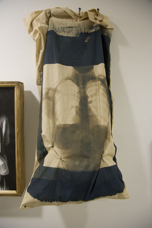 X-Ray's In Bed    Toned Cyanotypes of the Artist's X-Ray's on Cotton Pillowcases, Filled with stuffing and rocks, Sewn with the Artist's Hair, Hung with Hooks,