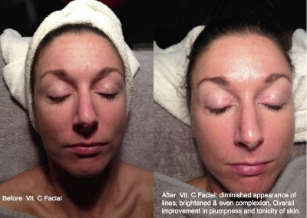 Before ([eft) After (right) Vit. C Facial. Diminished appearance of lines, dark spots and overall improvement of tonicity and plumpness.