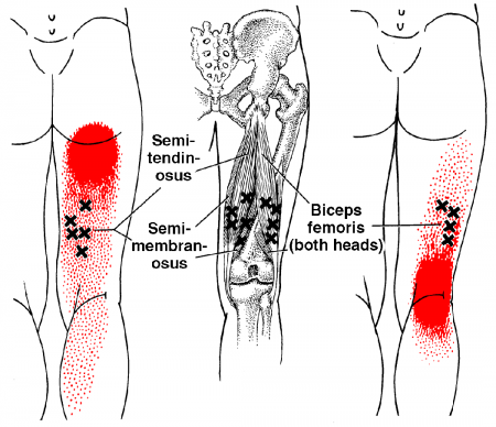 Trigger points in the hamstrings can refer pain to the upper thigh, buttock and around the knee