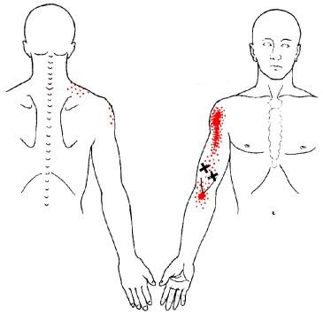 biceps-tps.jpg