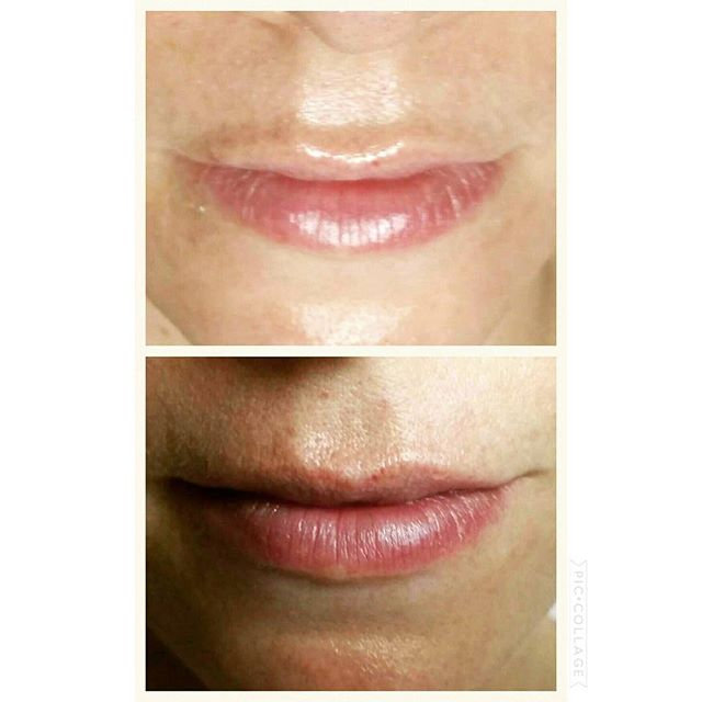 Full ✔plump ✔ hydrated ✔ lips Now who wouldn't want that 💋 #thelips #injectionfree #hydrate #plump #full #defined #skin #health #wellness #sydneybeauty #facialspecialist #skintherapy #sydney #ladyluxe #beauty #balmain #ladyluxebeauty #skinbyjess