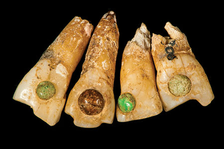 Incisors decorated with stones. Note that the teeth also are filed—as well as filled. (Photo courtesy Science Museum of Minnesota)