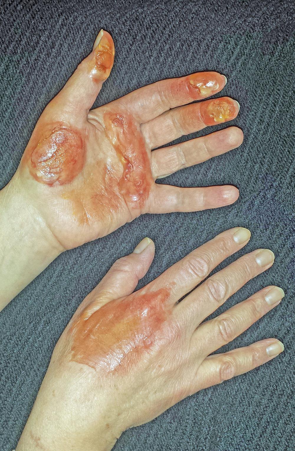burnt hands.jpg