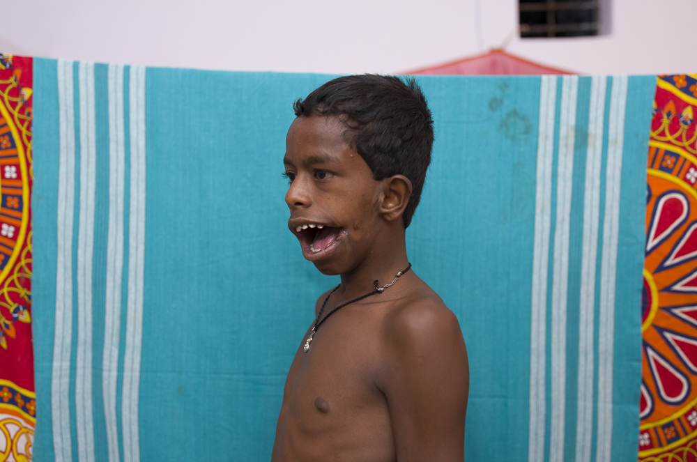 A young boy born with congenital deformations.  The tyranny of distance, small genetic pool and teenage mothers often leads to such deformities.
