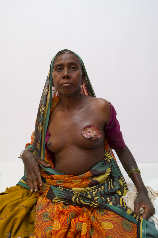 A patient in Melghat, India and a moment where as a photographer you're really left changed after the capture. During pre-operative rounds I was asked to shoot this patient.She is from the tribes surrounding the hospital and was awaiting for her mastectomy procedure the following day. Clearly at this far stage it could only be palliative treatment. I've thought about this image for 10 months since I took it, and looking at it now I see a woman with incredible strength and pride who represents one side of poverty - access to healthcare. I share this not to shock anyone, but to highlight that reconstructive plastic surgery has it's origins in rebuilding lives