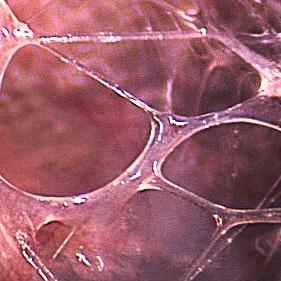 Microvacuoles2-web.jpg