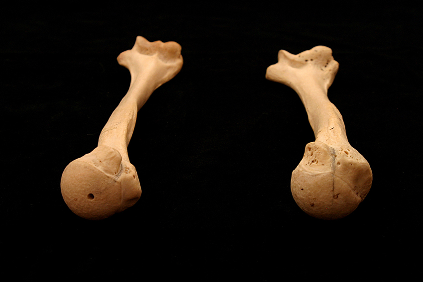 Humerus_Torsion_1 web.jpg