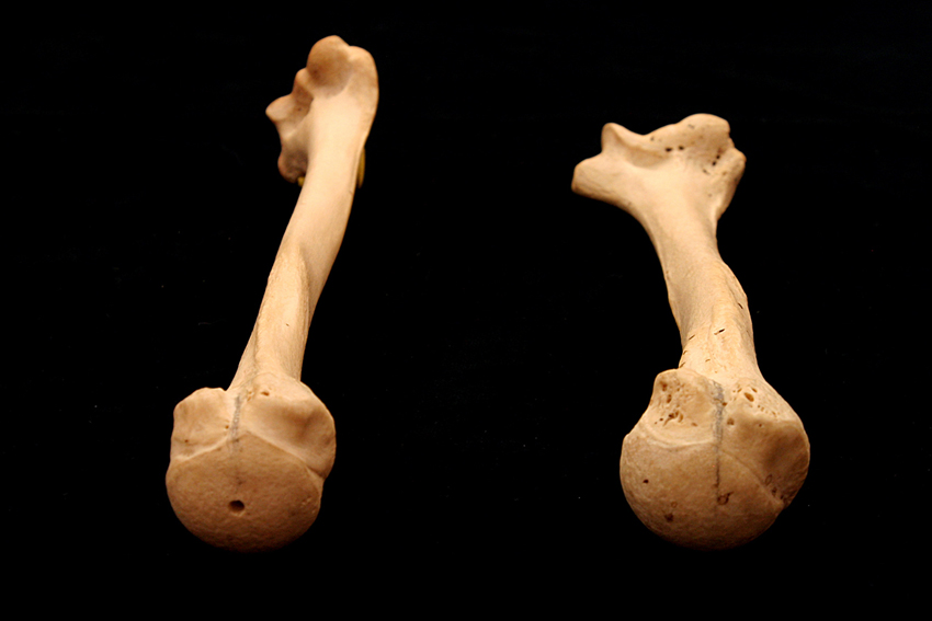 Humerus_Torsion_2 web.jpg