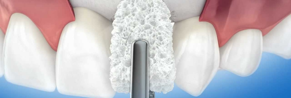 Bone Grafting: