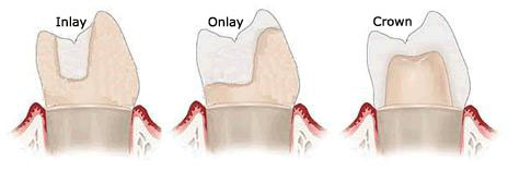 dental-inlay-onlay-and-crown.jpg