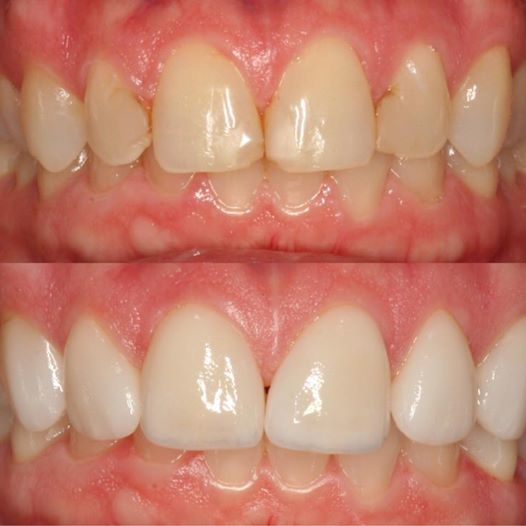 Veneers (Before & After)