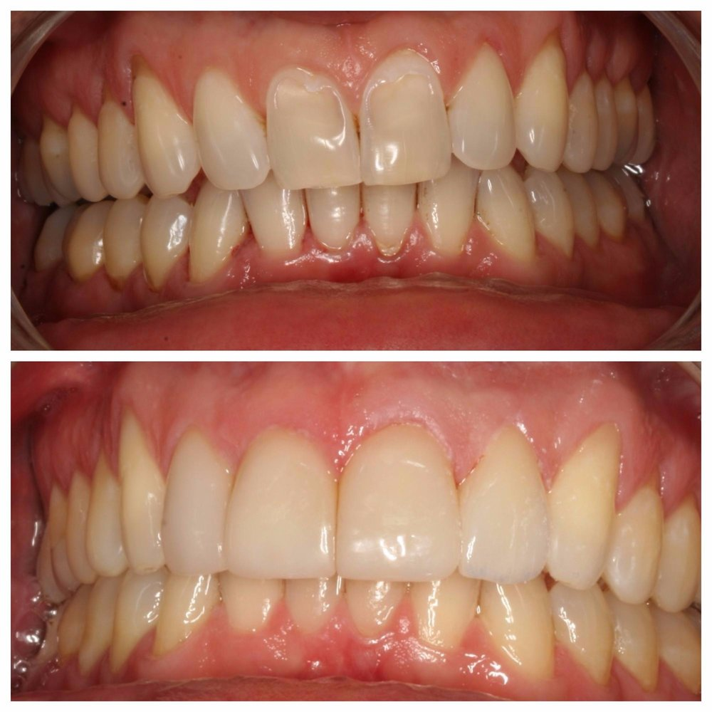 Three Anterior Veneers