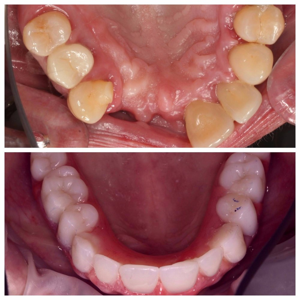 Upper Arch Implant + Restoration