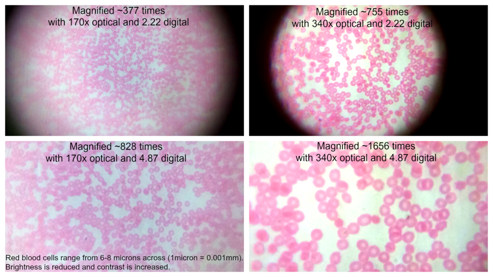Human blood smear with brightness reduced and contrast increased. (Each cell is between 6 to 8 microns. 1micron=0.001mm)