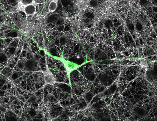 GFP expressing neurons allow for visualization of dendritic spines within complex neuronal networks