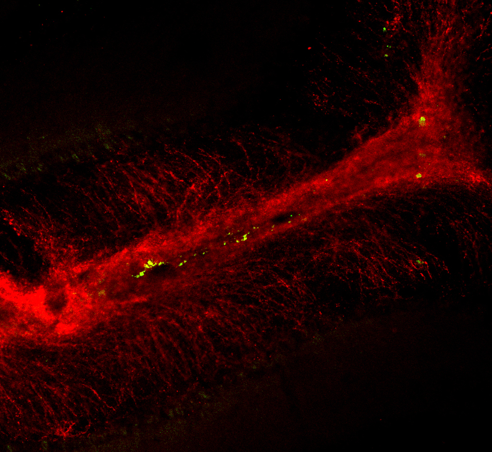 GFP Expressing OPCs (Green) transplanted into living cerebellar slices functionally incorporate into the myelin tract (Red)