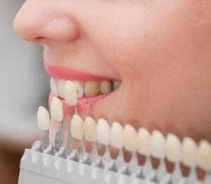Cosmetic Dentistry Mesa.jpg