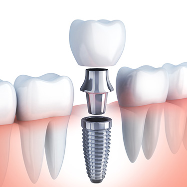 DENTAL IMPLANTS Only $749  per each placement only. After the Dental Implant heals into your bone, then the Post and Crown will be an additional $1350 to complete the treatment process.  Total Price of $2099  for qualified patients only.  Top Quality Titanium Implants made in USA with High Success Rates. Schedule your Free Consultation now by calling 480-833-9942. Limited Time Offer!