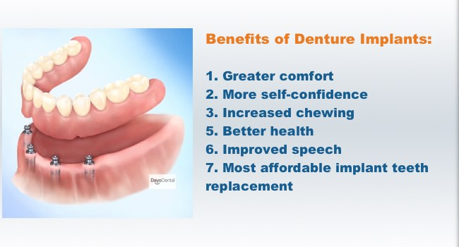 4 Dental IMPLANTS with SNAP ON Supreme DENTURE only $5995 TOTAL!  Taste your food once again without having that bulky palatal area in your upper denture anymore. Bite into that Apple Confidently again! Smile More and Live Happier.  This can be for your Upper or Lower Denture.   Limited Time Offers. Call 480-833-9942 to schedule your FREE CONSULTATION!