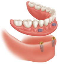 2 Lower Implants with Snap on Supreme Lower Denture only $3295. Applies to Lower Denture Only